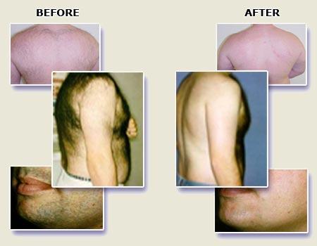 Image result for لیزر درمانی برای موهای زائد مردان